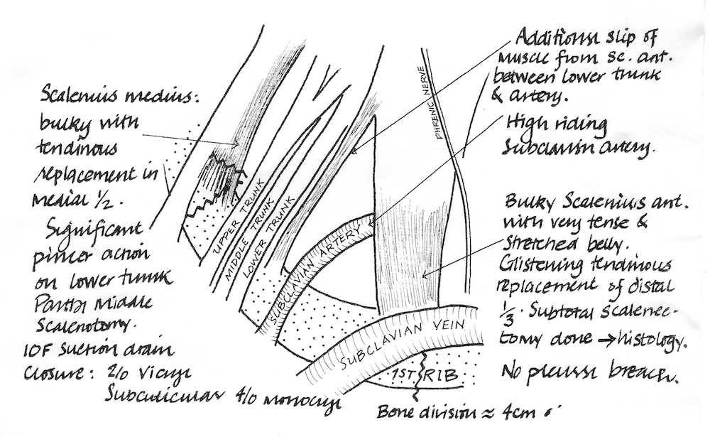 A pen and ink medical illustration showing the muscles, veins, arteries and tendons in my neck.